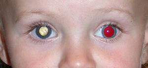 White reflex as shown in a child's photograph.