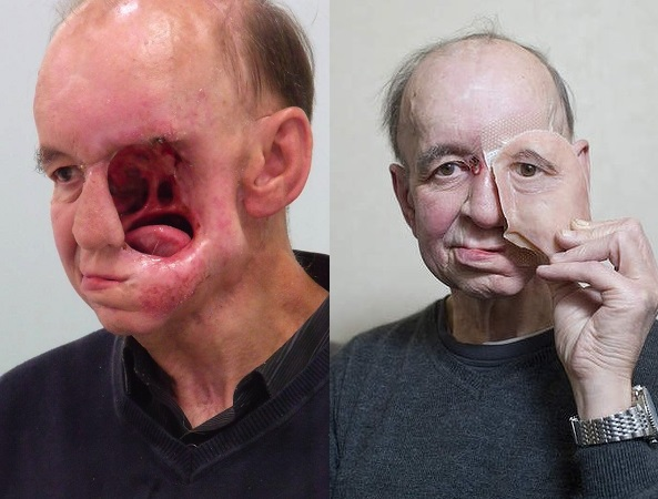 3d printed face transplant