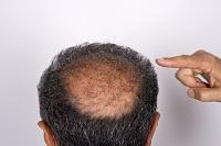 Avoiding Hair Transplant Complications